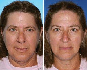 Jak nikotyna niszczy człowieka widać na twarzach identycznych (kiedyś) bliźniąt
