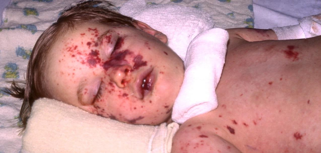 Dlaczego nie należy szczepić dzieci – historia pewnego obłędu