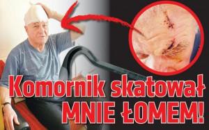 komornik-skatowal-mnie-lomem_22655132