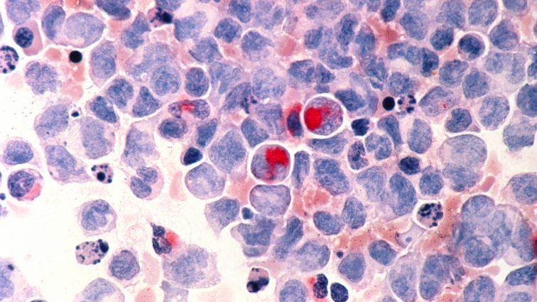 Ostra białaczka szpikowa to co najmniej 11 chorób