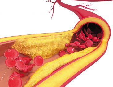Statyny mogą prowadzić do stwardnienia tętnic