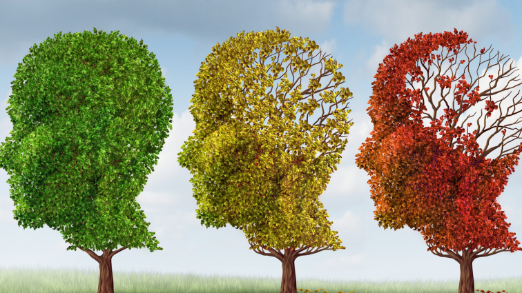 1/3 pacjentów z udarem mózgu jest źle leczona